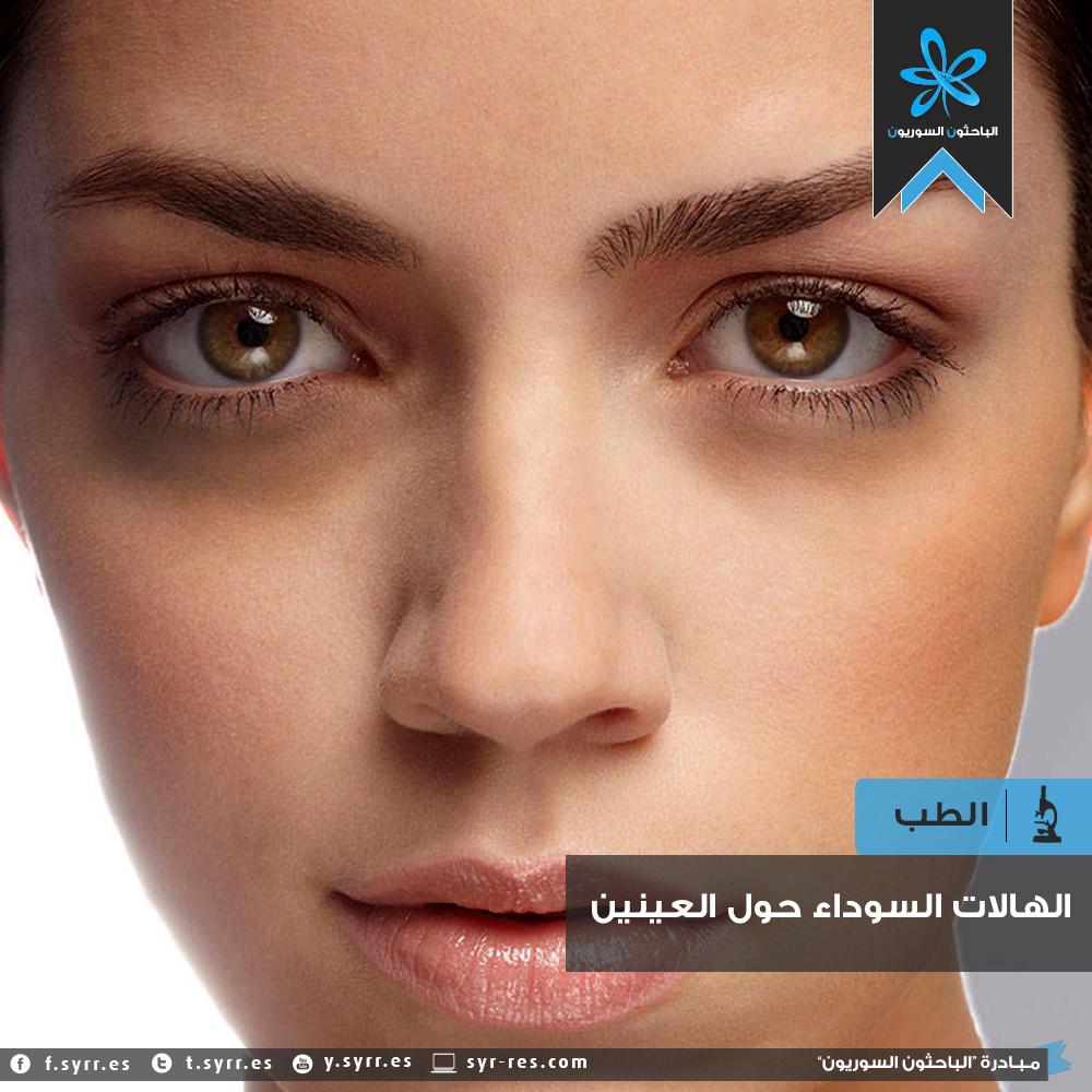 e76cce9ec الباحثون السوريون - الهالات السَّوْداوات حول العينين