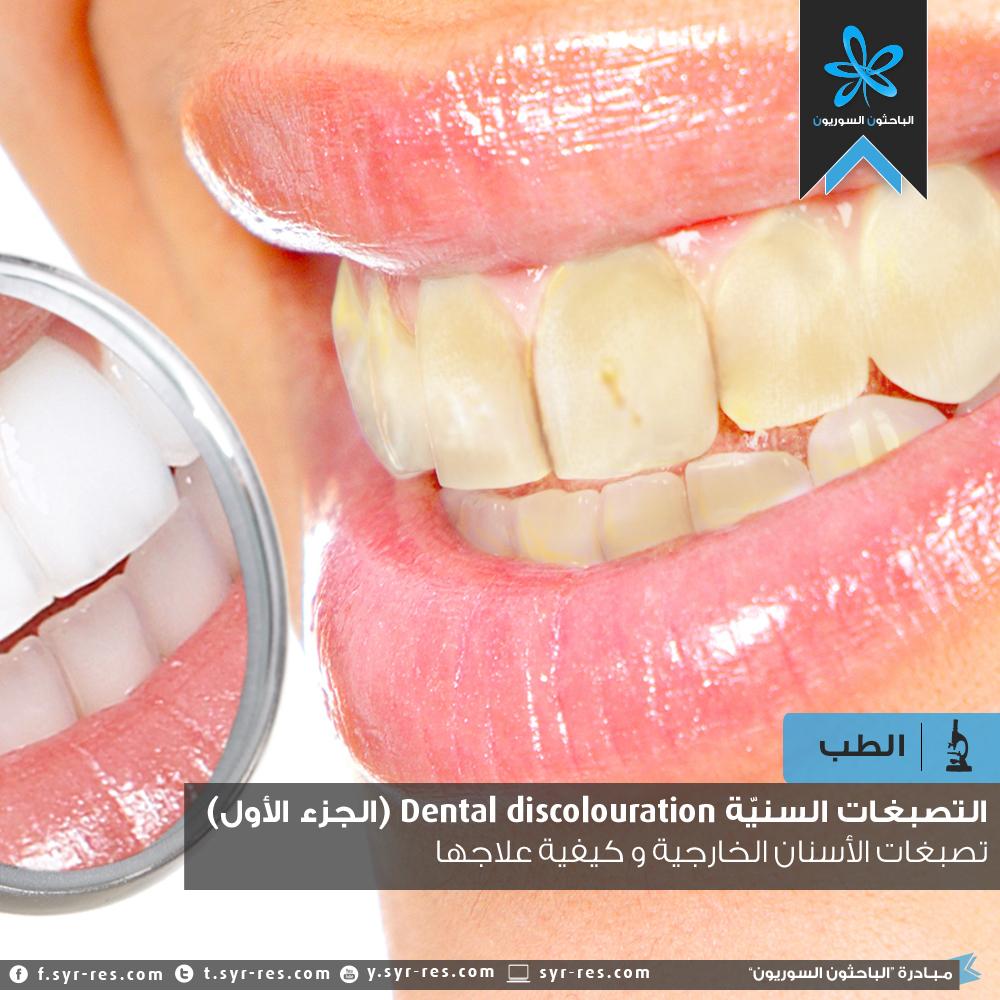 الباحثون السوريون التصب غات السني ة Dental Discolouration الجزء الأول