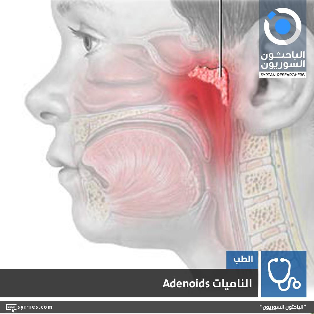 الباحثون السوريون الناميات Adenoids