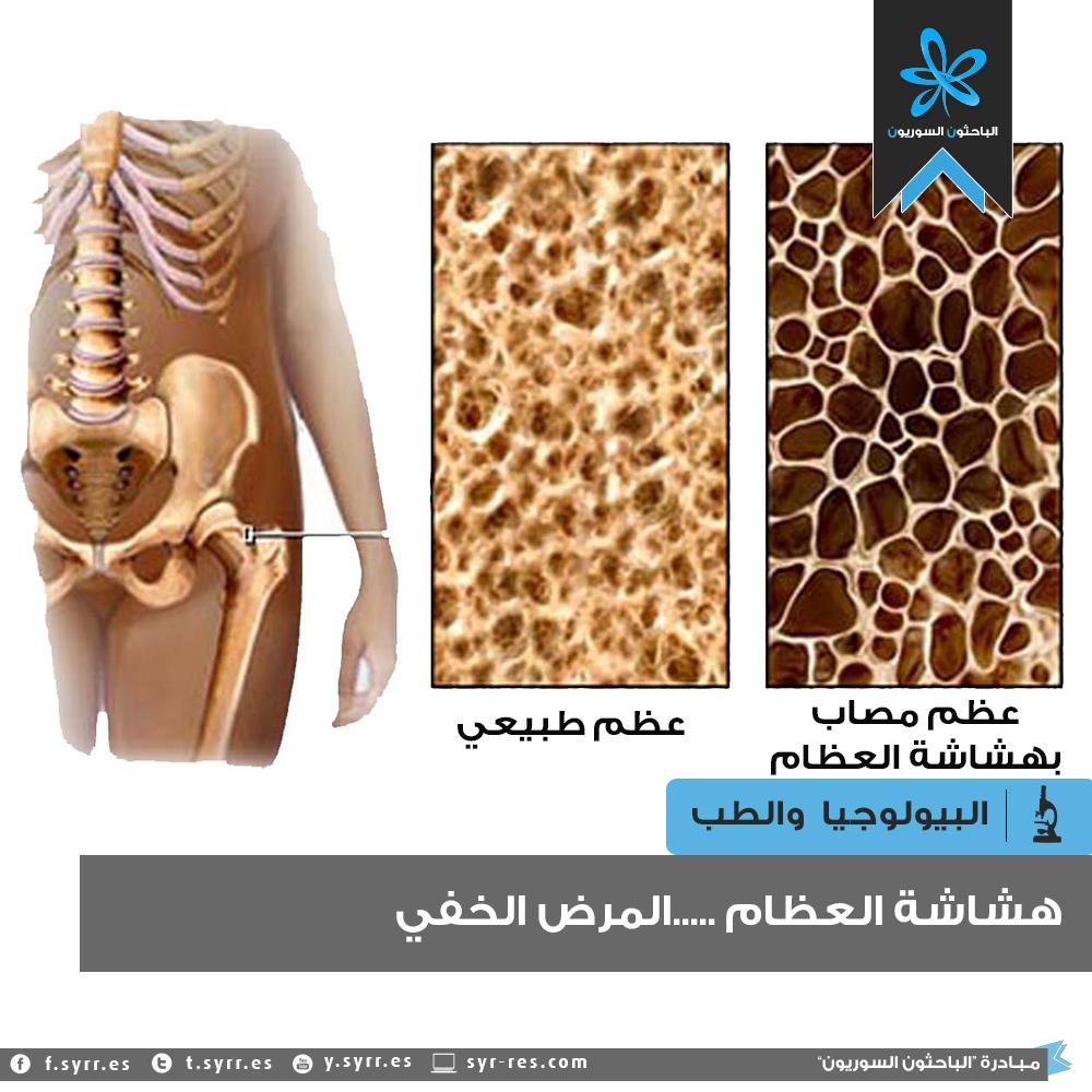 الباحثون السوريون هشاشة العظام المرض الخفي