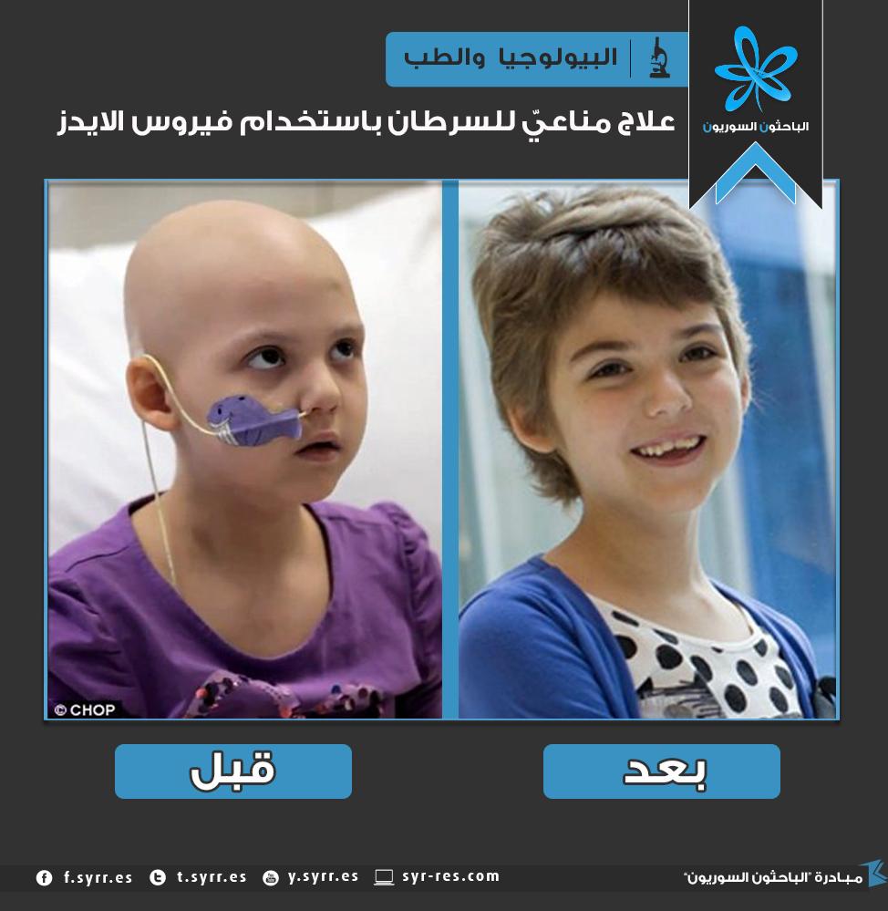 الباحثون السوريون علاج السرطان باستخدام فيروس الإيدز
